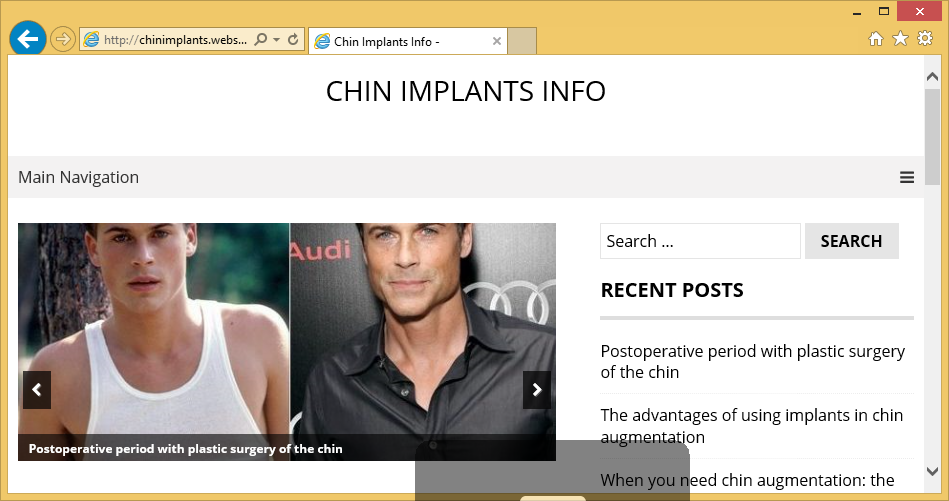 Chinimplants